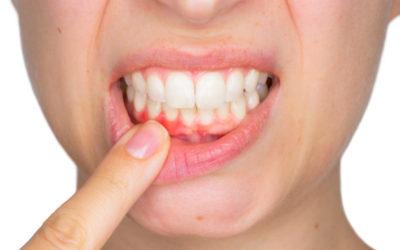 Como prevenir a gengivite?